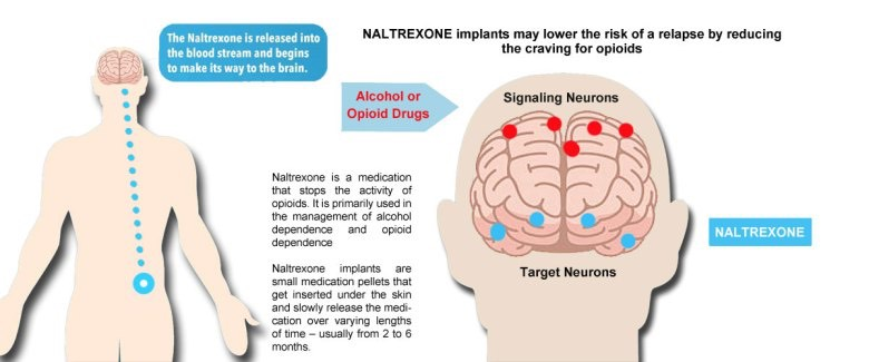 Naltrexone work against opiates in the brain