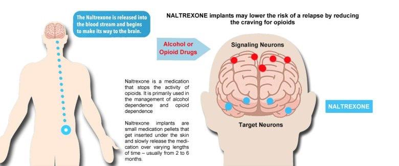 Naltrexone work against opiates in the brain