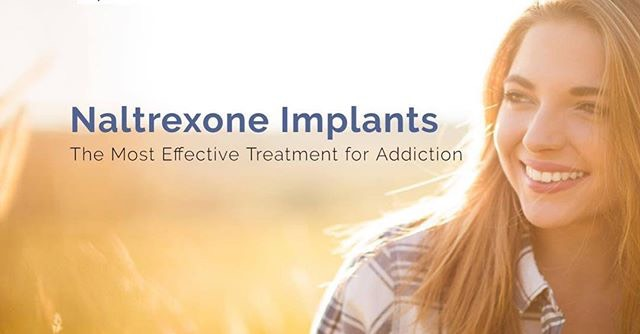 Naltrexone Benefits